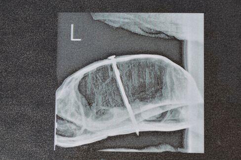 Box Turtle X-Ray