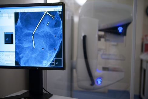 Women With Pre-Cancer Tumors Urged to Reconsider Surgery