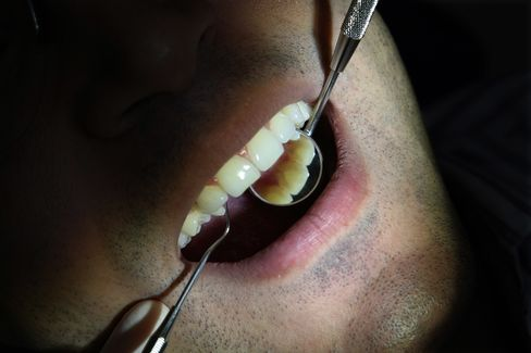 Bacteria in Brains Suggests Oral Hygiene Has Role in Alzheimer's