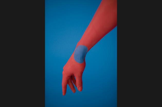 Revise Median Nerve at Wrist