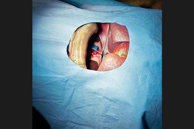 Surgery Show