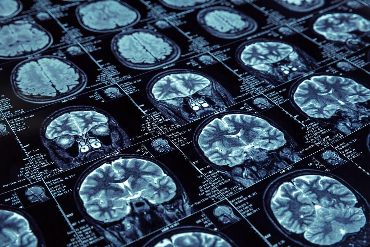 Failure of Alzheimer's Disease Study Creates a New Penny Stock