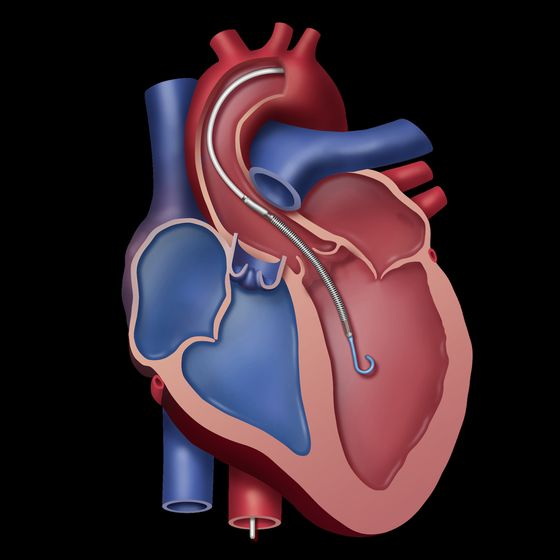 World's Smallest Heart Pump Fuels Red-Hot Medtech Stock