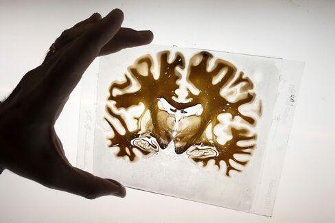 Stress Blocks Gene That Helps Protect Brain Against Depression