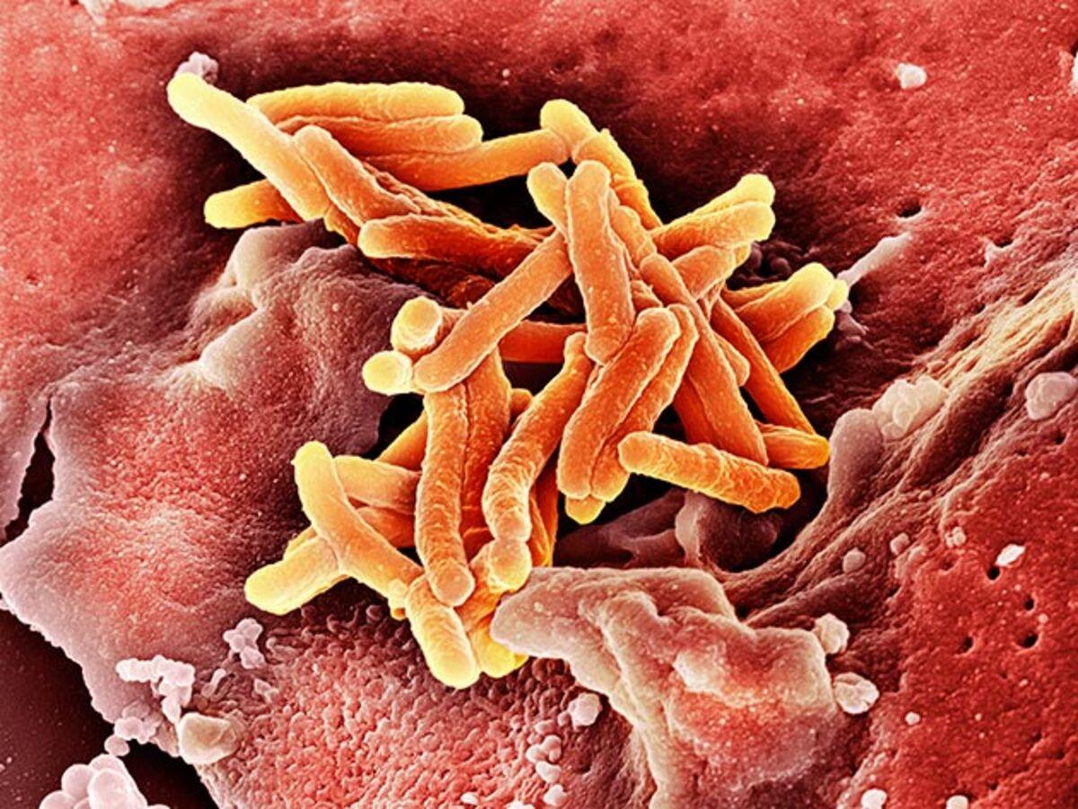 tuberculosis antibiotic resistance essay