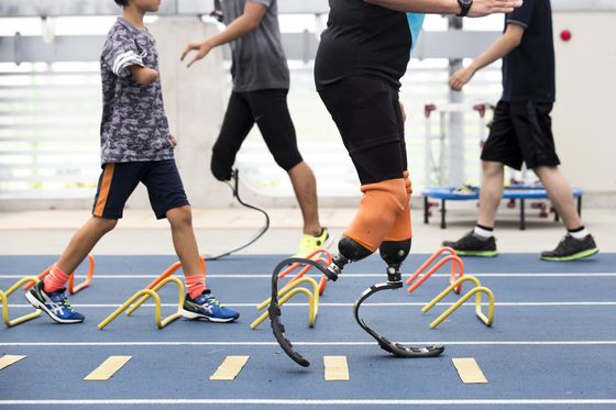 Blade Runners: ProstheticsStartup Xiborg is Ready for Business