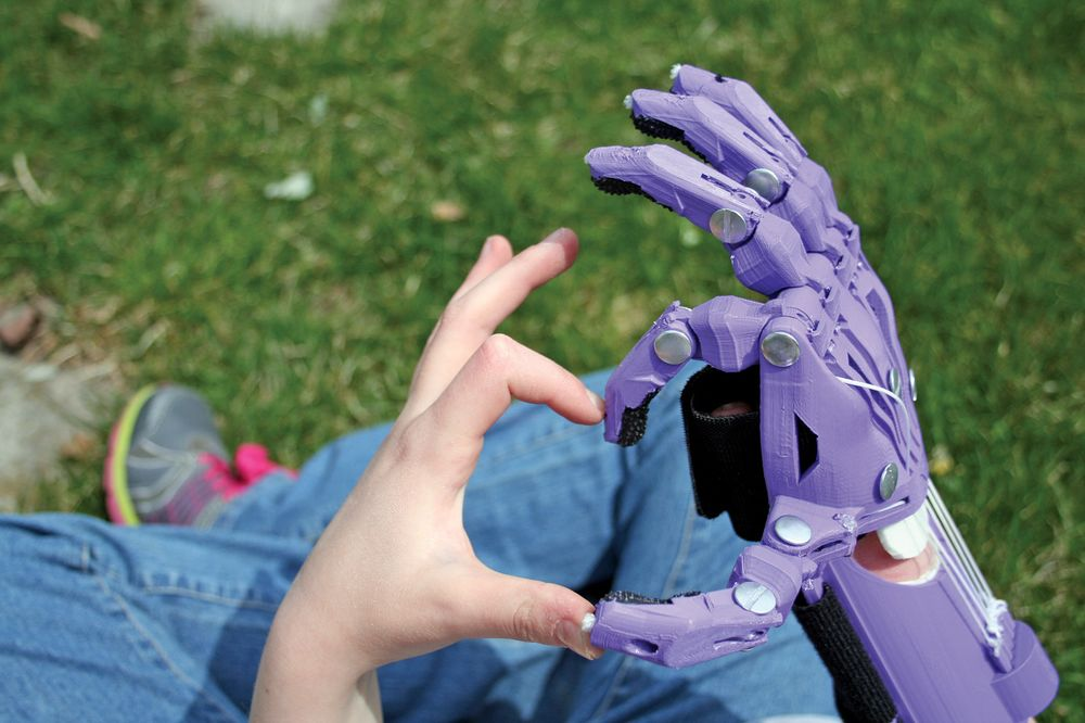 E-Nable's 3D-Printed Prostheses for Kids - Bloomberg