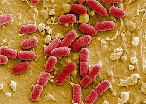 E. Coli Outbreak Reaches Deadliest on Record as Kidneys Fail