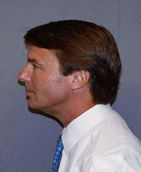 Former U.S. Presidential Candidate John Edwards