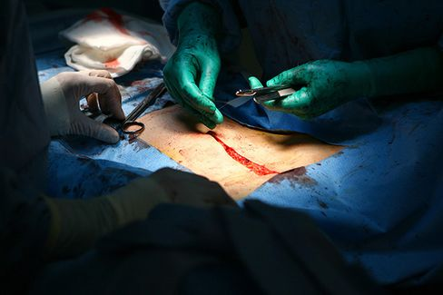 More Pain for Women as Cancer Limits Hysterectomy Option