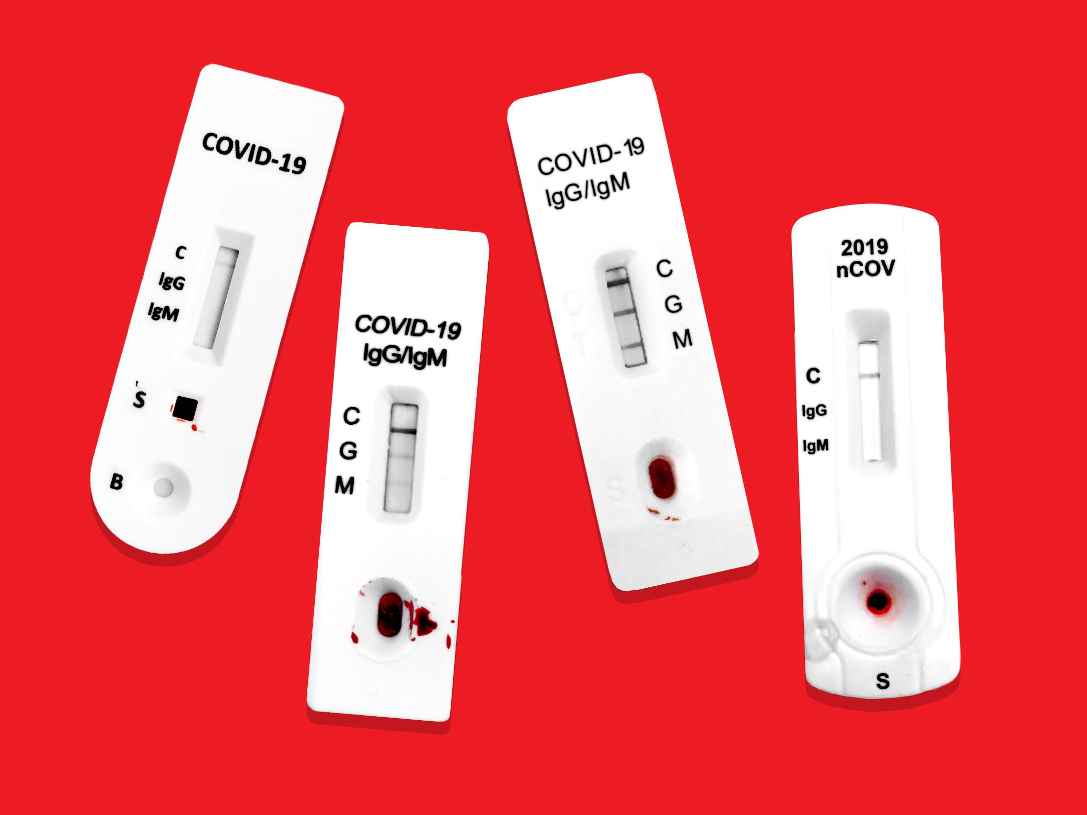 Coronavirus Antibody Tests May Produce Contradictory Results Bloomberg