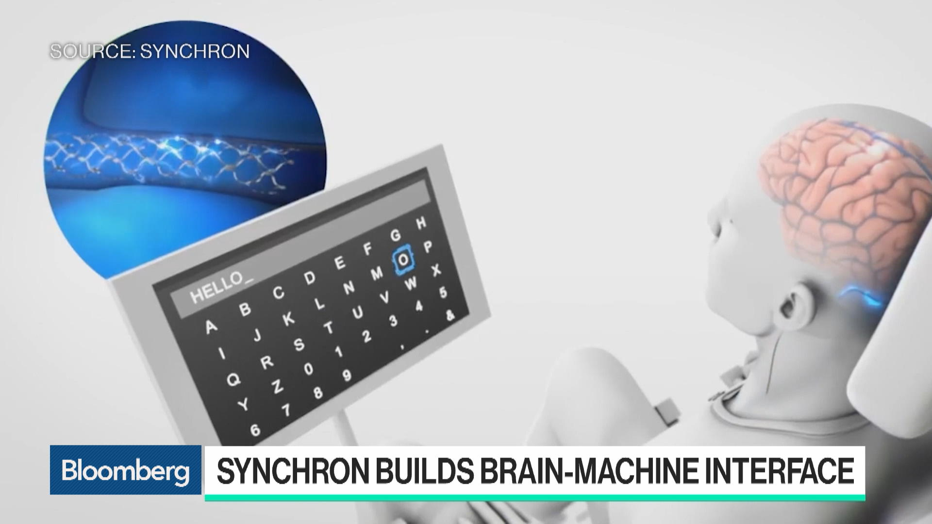 Brain Implant Lets Patients Control Prosthetics With Their Minds: Synchron CEO Tom Oxley