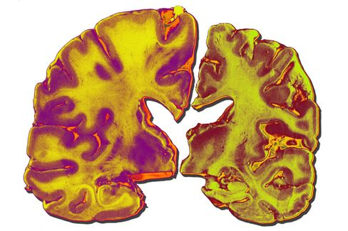To Fight Alzheimer's, Research Should Be Priority No. 1