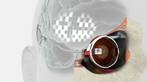 Blind Poised to See in Bionic Eye Drive for 285 Million