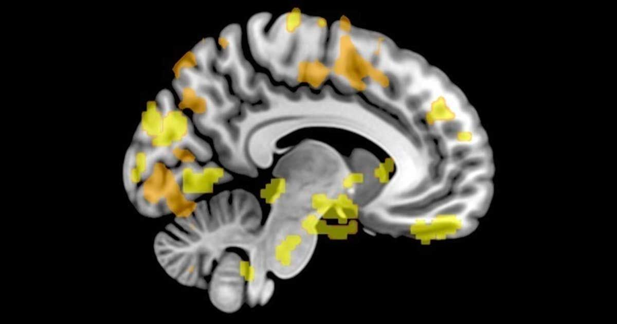 What My Brain Scan Revealed About the Science of Persuasion