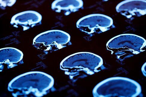 Ancient Human Kin's DNA Code Illuminates Rise of Modern Brains