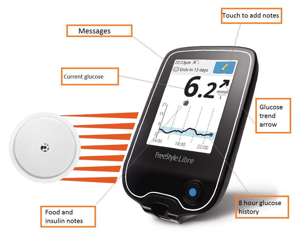 U S  Diabetes Patients Are About to Get Some High-Tech