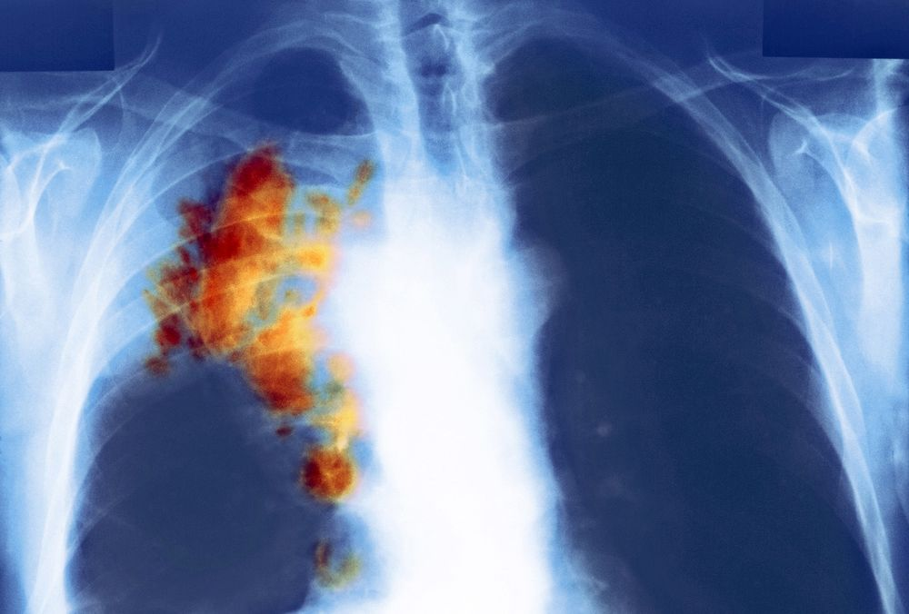 Lung Cancer: Amgen Gene-Targeting Drug Test Shrinks 54% of