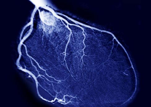 Heart Angiography