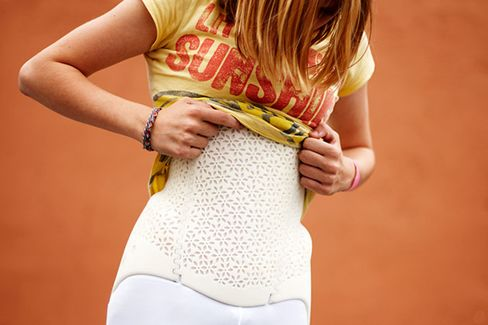 Personalized 3D-printed scoliosis brace from Bespoke Braces