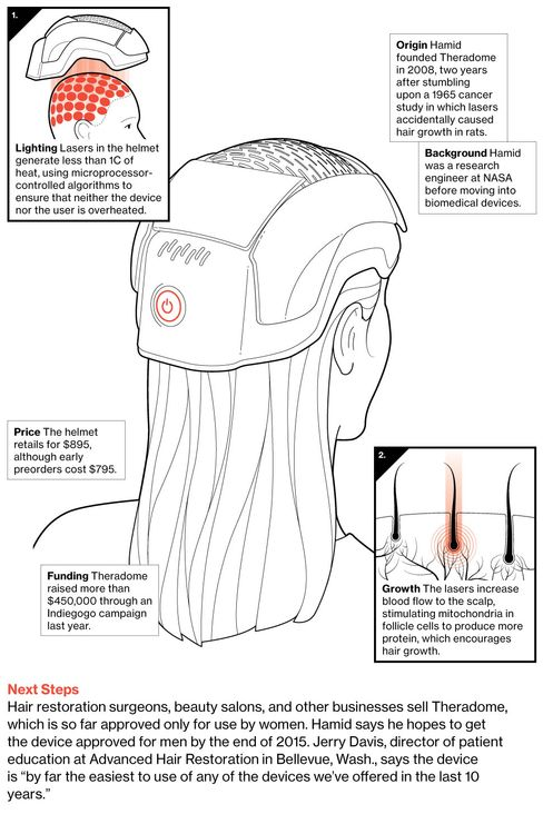 Theradome Helmet Fights Hair Loss With Lasers