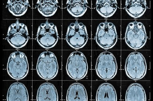A New Tool Lets Brain Surgeons See What They're Doing