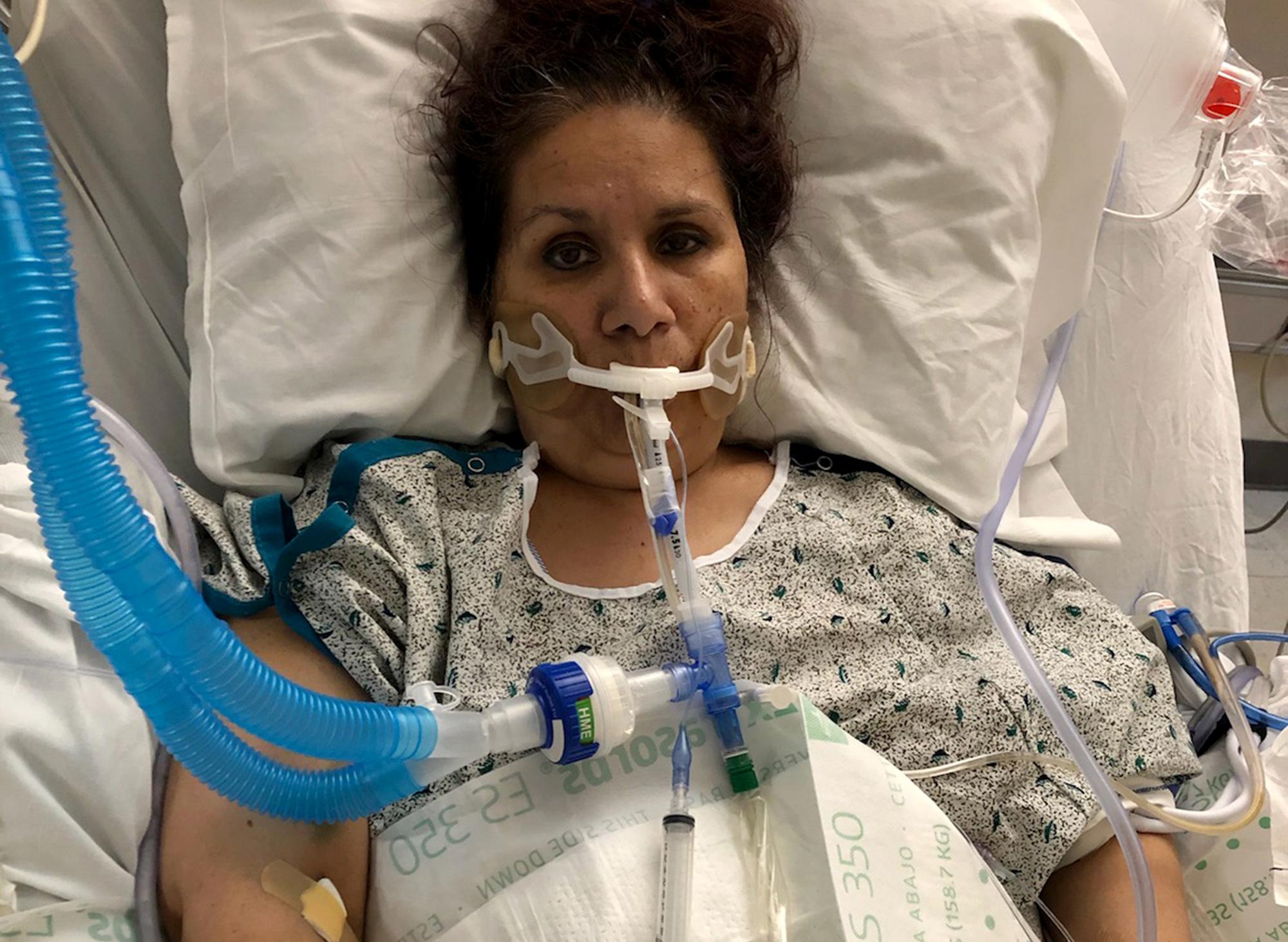 Coronavirus Ventilator Survivors Face Harsh Recovery After Virus