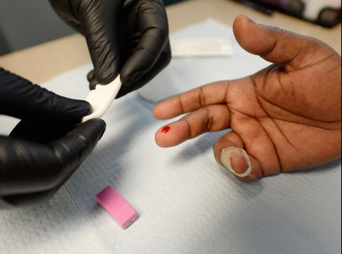 HIV Testing in Los Angeles