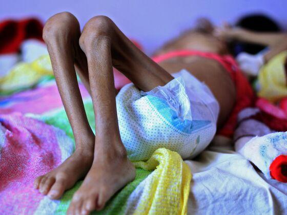 Bombings and Starvation: Focus Turns to Saudi'sWar in Yemen