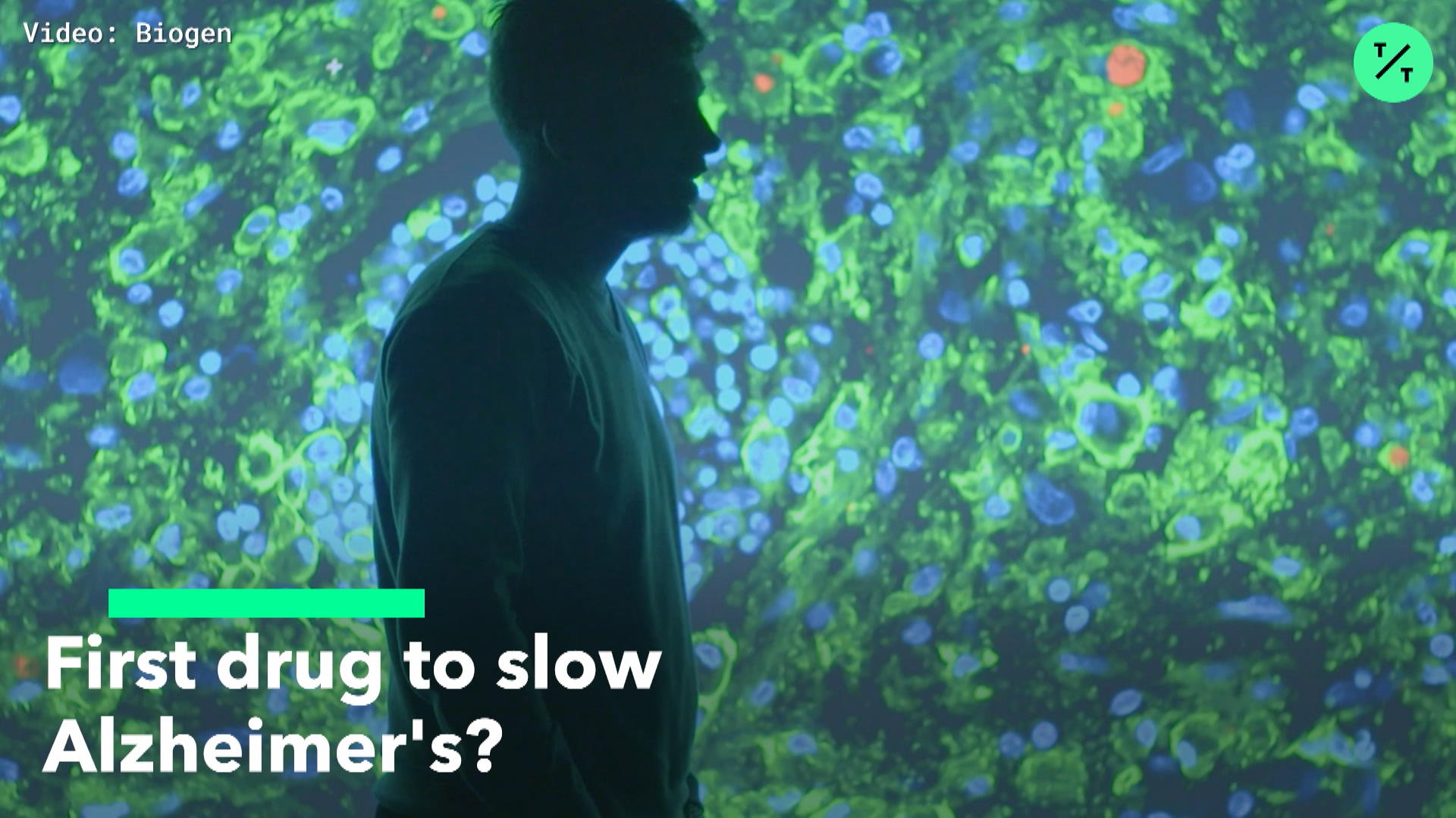 First Drug To Slow Alzheimer's?